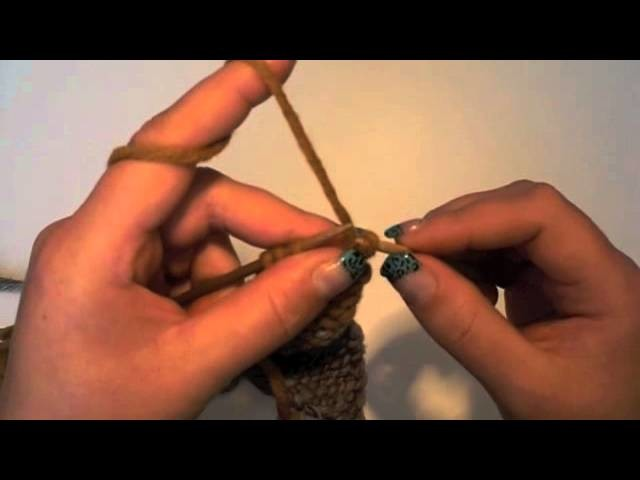 Teddy stricken | Teil 5 | Die Arme